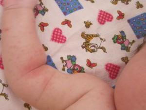 потница у новорожденного